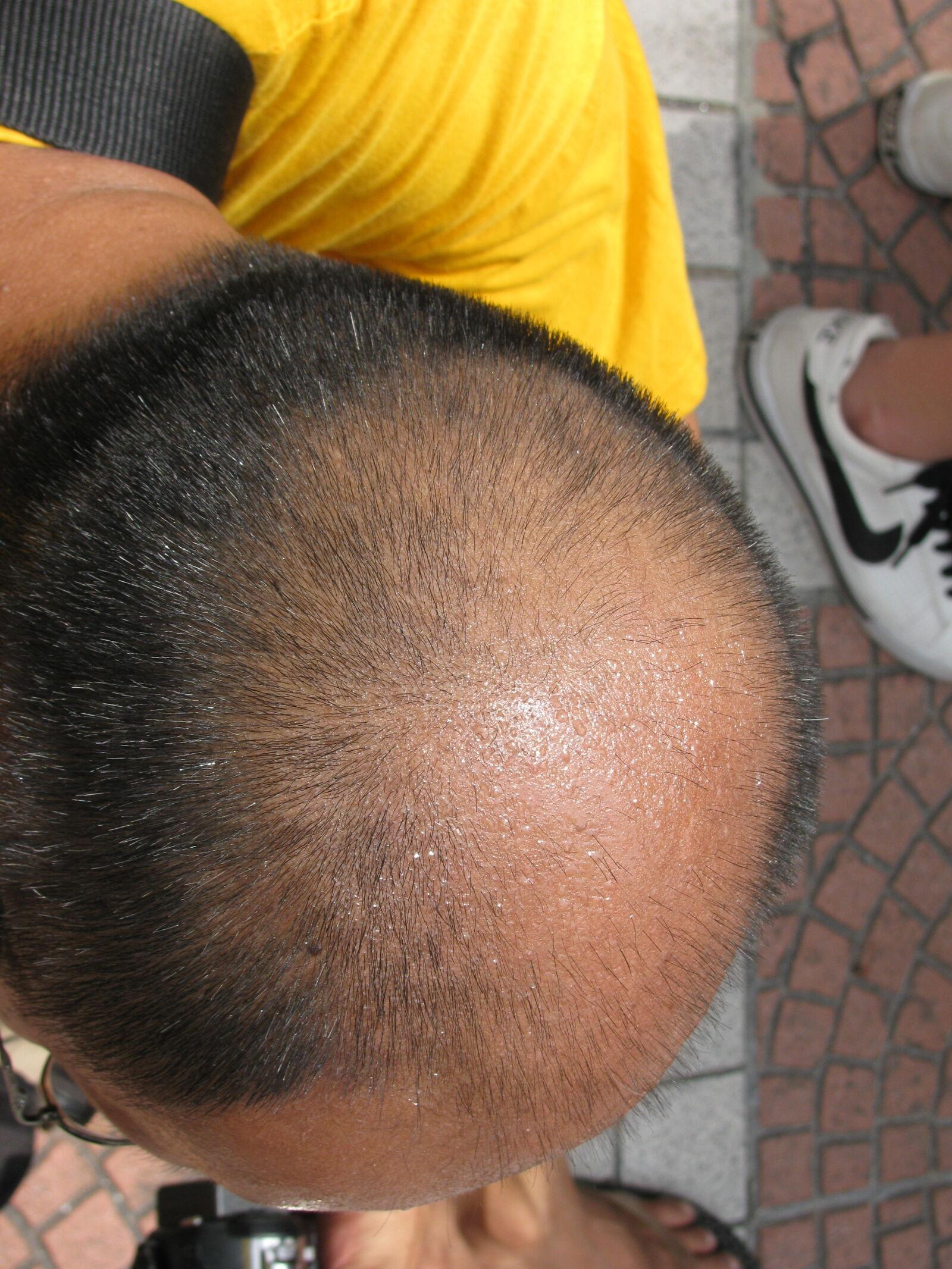 "Canon PowerShot SX110 IS sample photo. ""Balding, contrast, egg, hair"" photography"