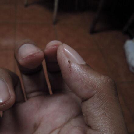 finger, splinter, theme, look, Canon POWERSHOT A3200 IS